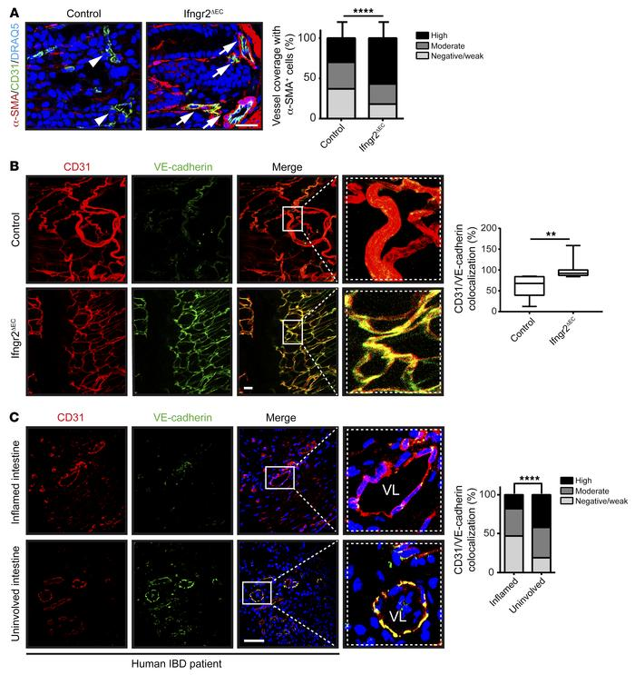 IFN-γ compromises mural cell coverage and VE-cadherin–mediated cell-cell...