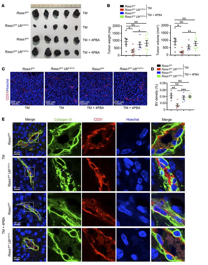 Disruption of Rasa1 in adult mice inhibits pathological angiogenesis in ...