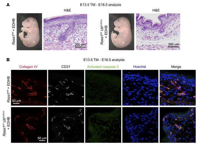 Rescue of developmental angiogenesis defects in mice with induced RASA1 ...