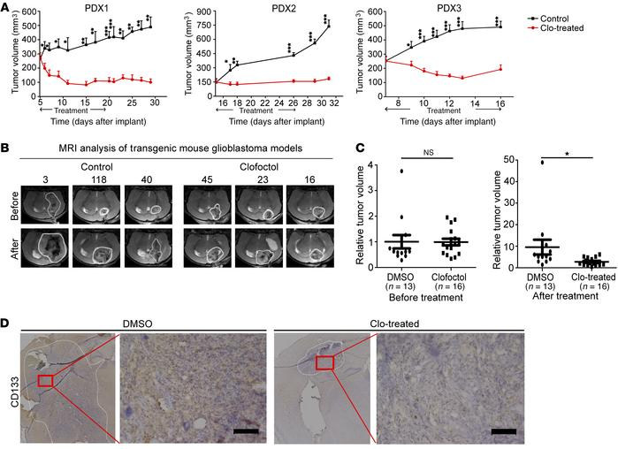 Clofoctol inhibits growth of gliomas in vivo in PDXs and transgenic xeno...