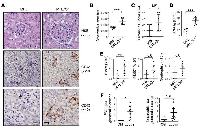 PMos accumulate in the glomeruli of diseased MRL/lpr mice and patients w...