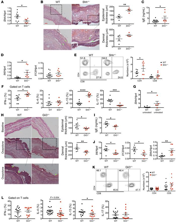 Shh mutation aggravates but Gli3 mutation ameliorates chronic AD. (A–F) ...