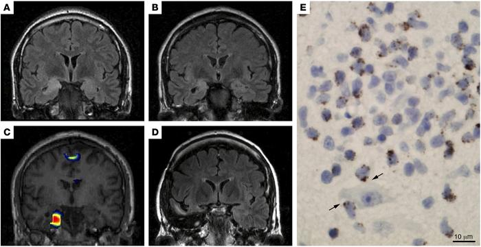 Paraneoplastic limbic encephalitis and epilepsy mediated by cytotoxic T ...