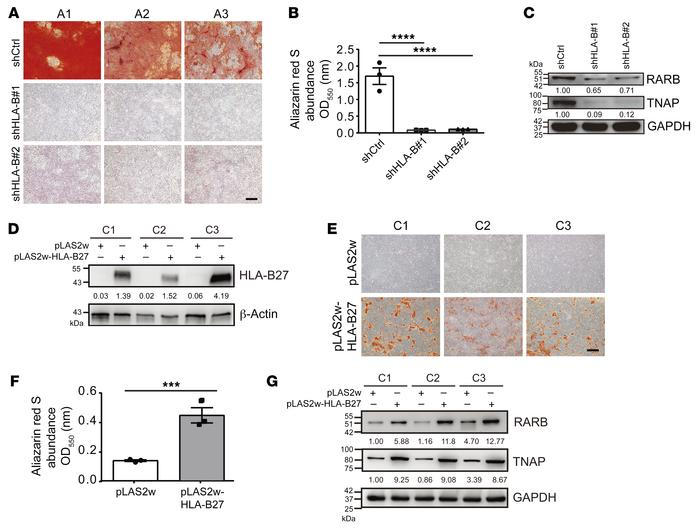 HLA-B27 mediates the upregulation of the RARB/TNAP axis in AS MSCs. (A) ...