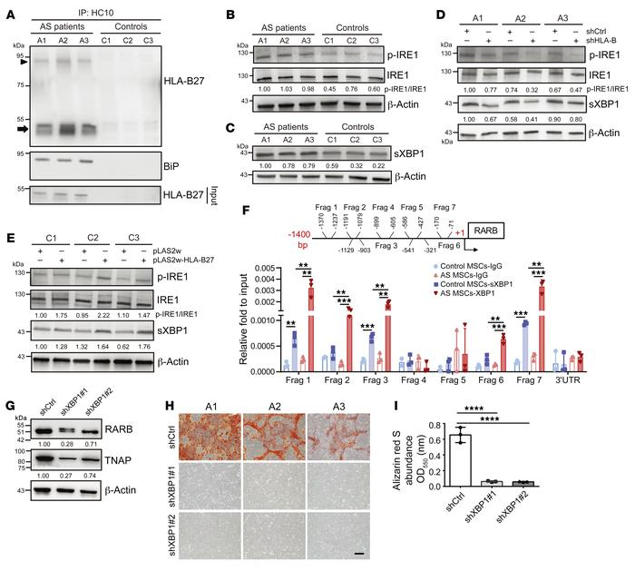 The HLA-B27–mediated activation of the p-IRE1/sXBP1 pathway promotes the...