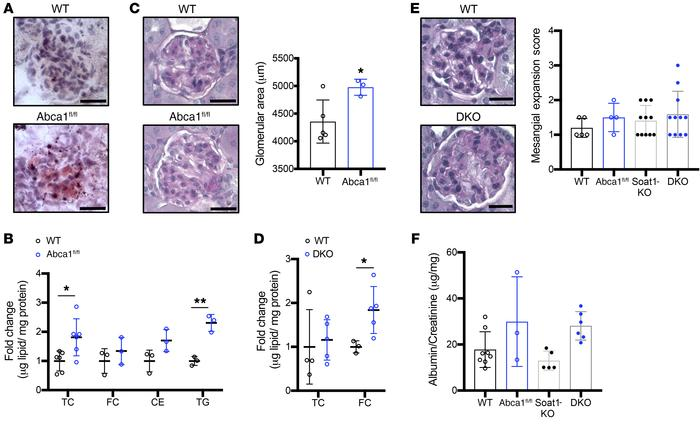 Podocyte-specific Abca1 deficiency leads to lipid accumulation, and conc...