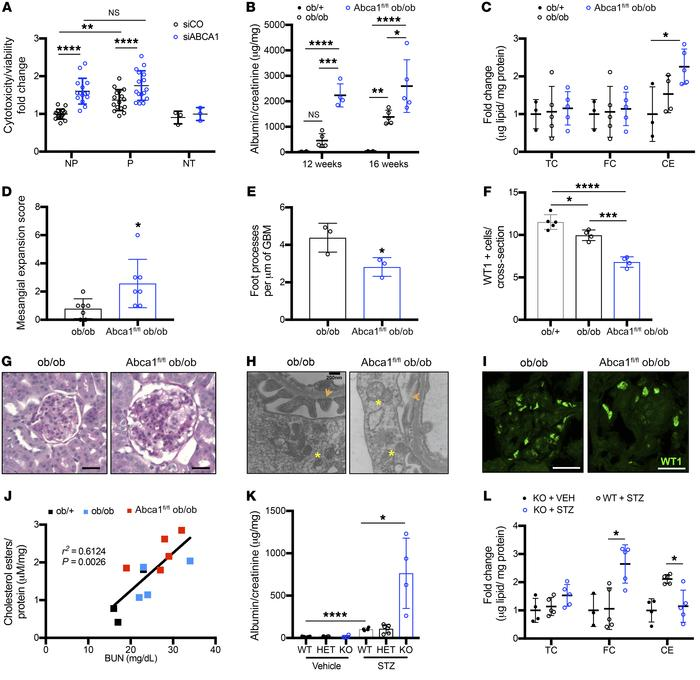 ABCA1 deficiency is a susceptibility factor for podocyte injury contribu...