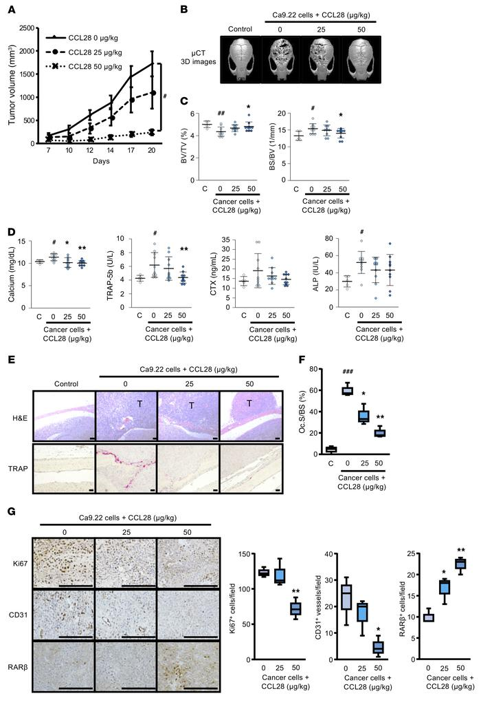 CCL28 treatment inhibits tumor growth and osteolysis in the calvaria of ...