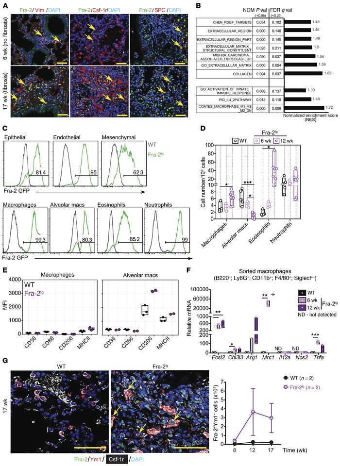 Alternative activation of macrophages in Fra-2Tg fibrotic lungs. (A) Con...