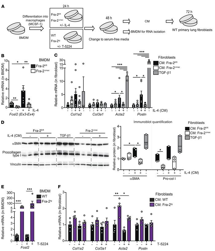 CM from Fra-2–expressing BM-derived macrophages induces lung fibroblast ...