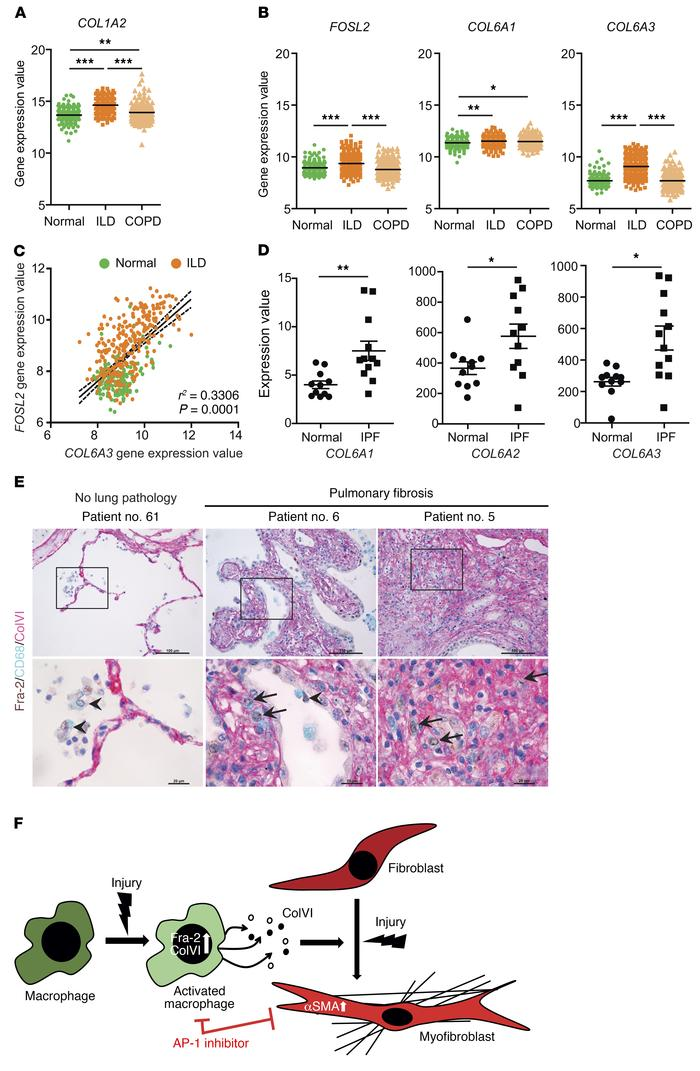 Fra-2 and ColVI expression in human lung fibrosis. (A) Gene expression v...