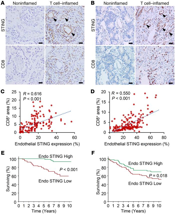 Endothelial STING expression correlates with intratumoral CD8+ T cell in...