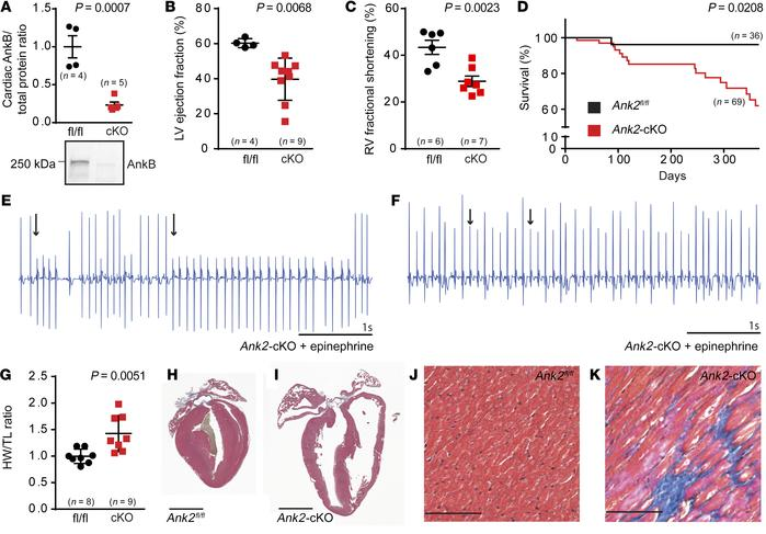 Cardiomyocyte-specific deletion of AnkB results in ventricular remodelin...