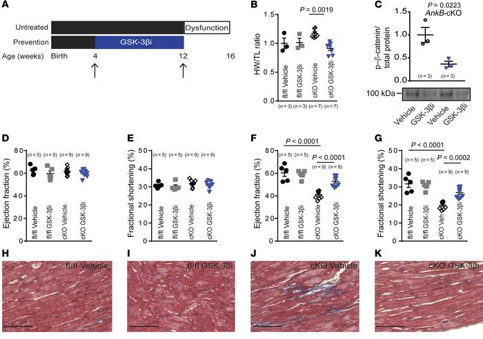 GSK3-β inhibition is sufficient to prevent cardiac remodeling associated...