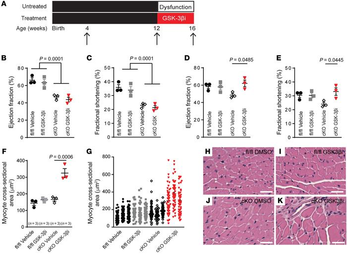 GSK3-β inhibition is sufficient to reverse cardiac remodeling associated...