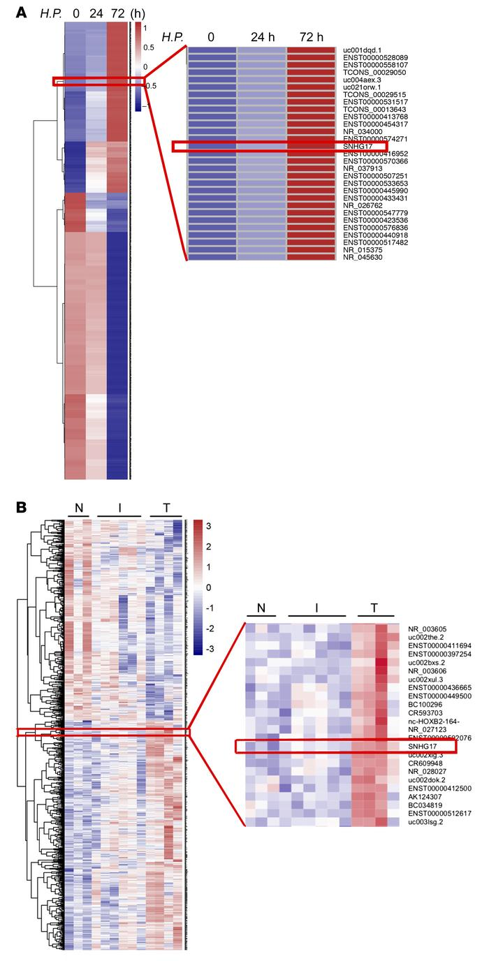 Identification of the H. pylori infection–induced lncRNA SNHG17. (A) Hea...