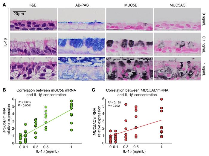 IL-1β induces goblet cell differentiation and MUC5B expression in a conc...