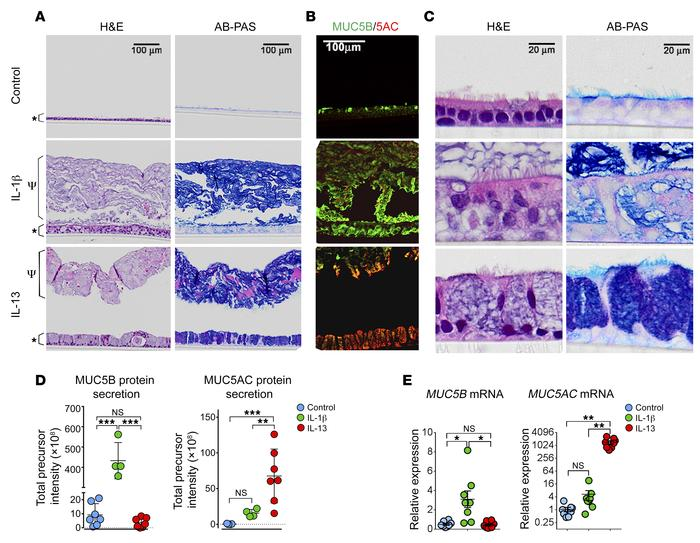 Chronic IL-1β exposure induces MUC5B-dominated mucin production. Non-CF ...