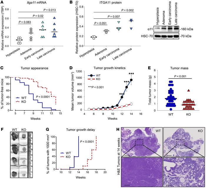 High integrin α11 expression associates with tumor progression in PyMT m...