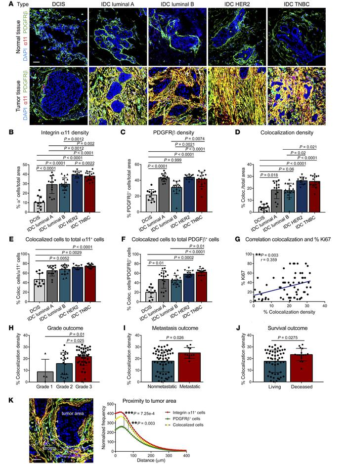 Integrin α11/PDGFRβ density is associated with a poor clinical outcome i...