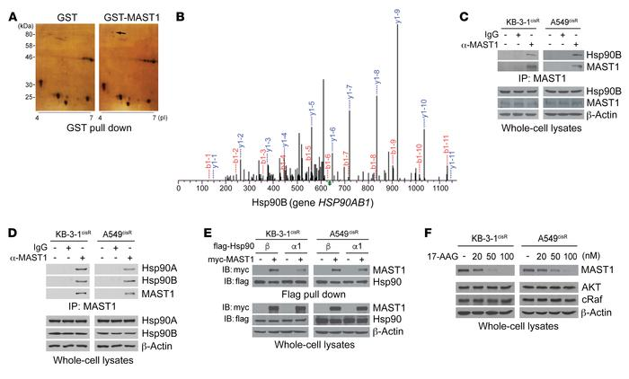 Hsp90B binds to and stabilizes MAST1 in cisplatin-resistant cancer cells...