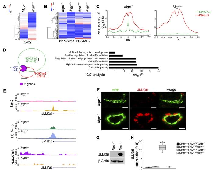 Excess Sox2 alters the transcriptional landscape of Mgp–/– cerebral ECs ...