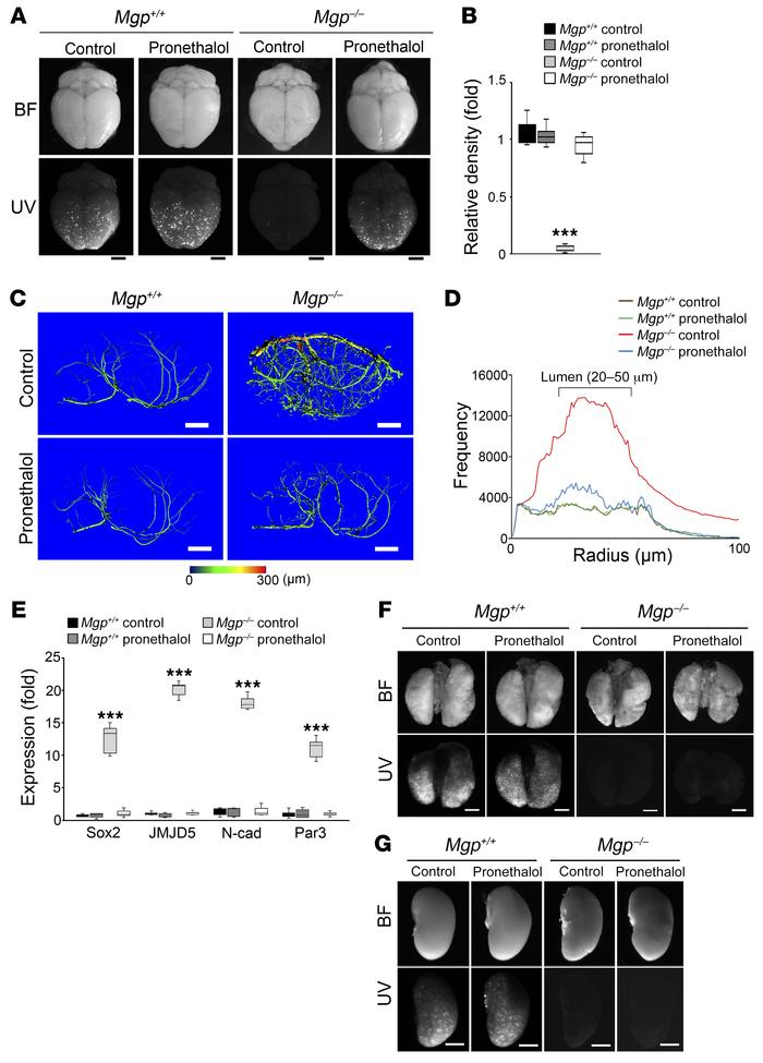 Pronethalol improves cerebral AVMs in Mgp–/– mice. (A) Pronethalol decre...