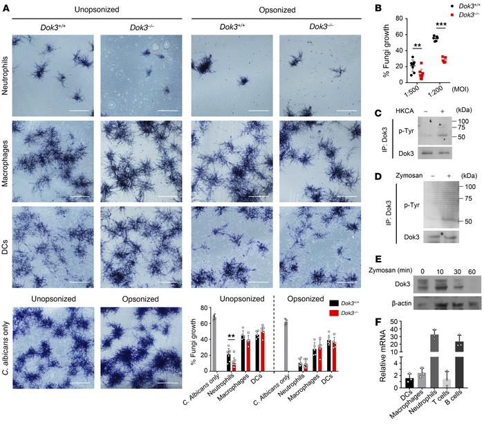 Dok3 negatively regulates fungi killing in neutrophils. (A) Killing capa...