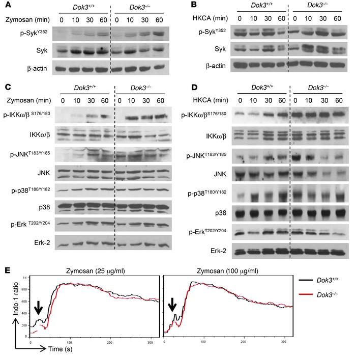 Dok3 deficiency enhances NF-κB and JNK signaling. (A and B) Immunoblot a...