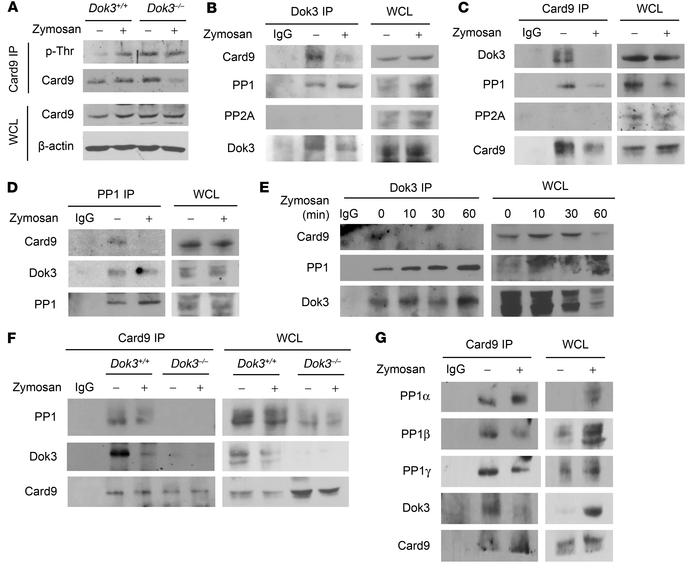 Dok3 mediates Card9 dephosphorylation through PP1 recruitment. (A) Purif...