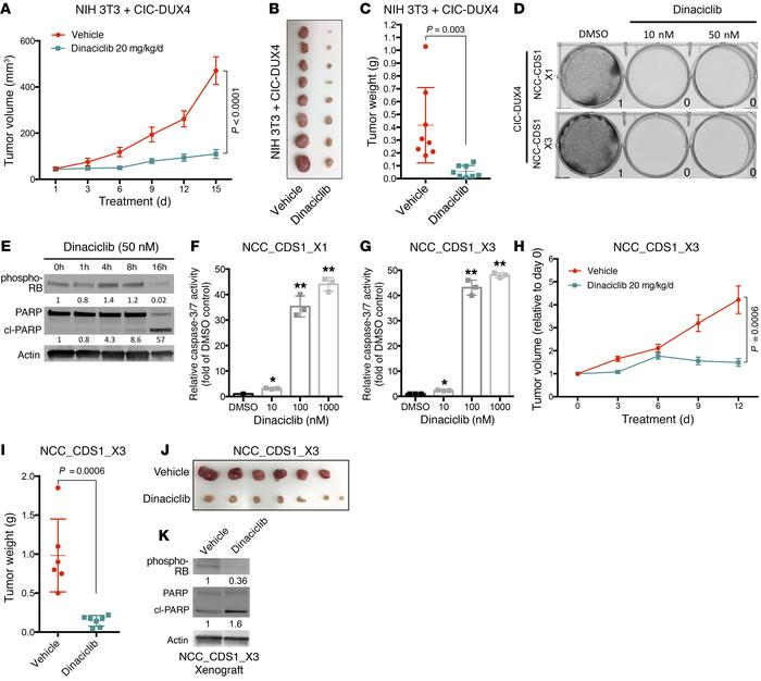 The CCNE-CDK2 complex is a therapeutic target in CIC-DUX4 sarcoma. (A) S...