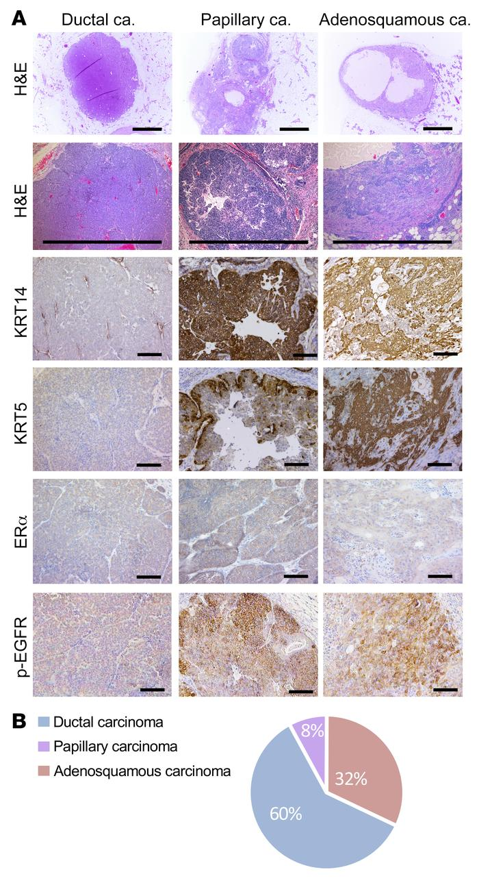 Small tumors recapitulate phenotypes observed in late tumors. (A) Repres...