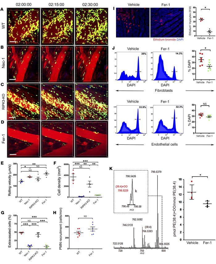 Ferroptosis regulates cell death and promotes neutrophil recruitment in ...