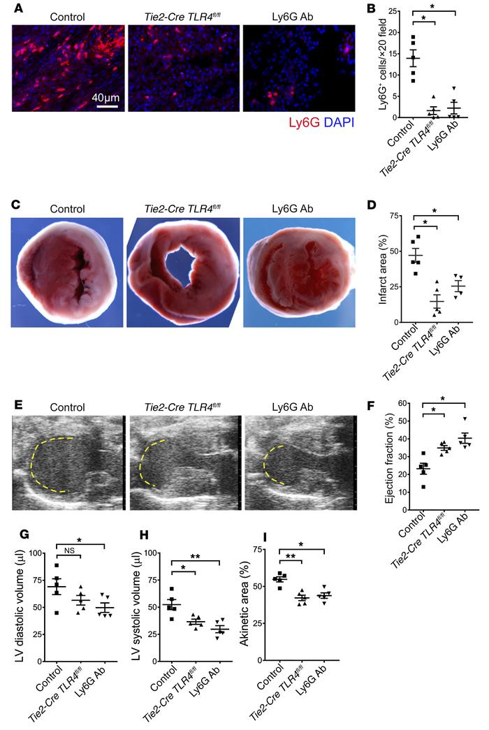 Neutrophilic infiltration contributes to cardiac damage. (A) Ly6G immuno...