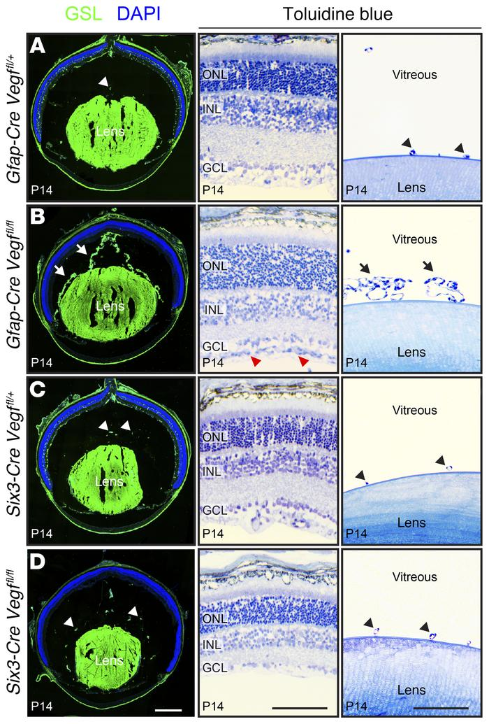 Persistent hyaloid vasculature in eyes without astrocyte-derived VEGF. (...