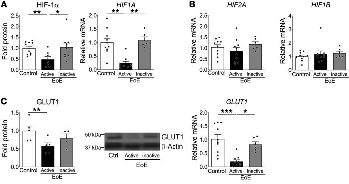HIF signaling is dysregulated in patients with active EoE. Whole esophag...
