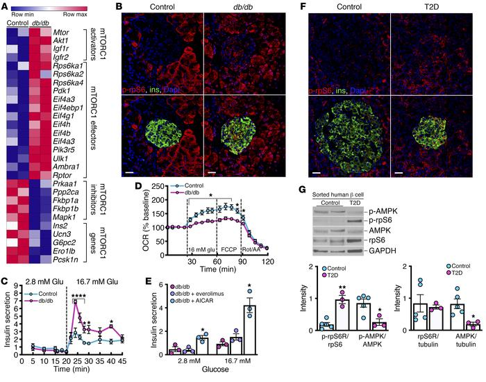 T2D induces increased β cell mTORC1 activity and a reversion of pancreat...