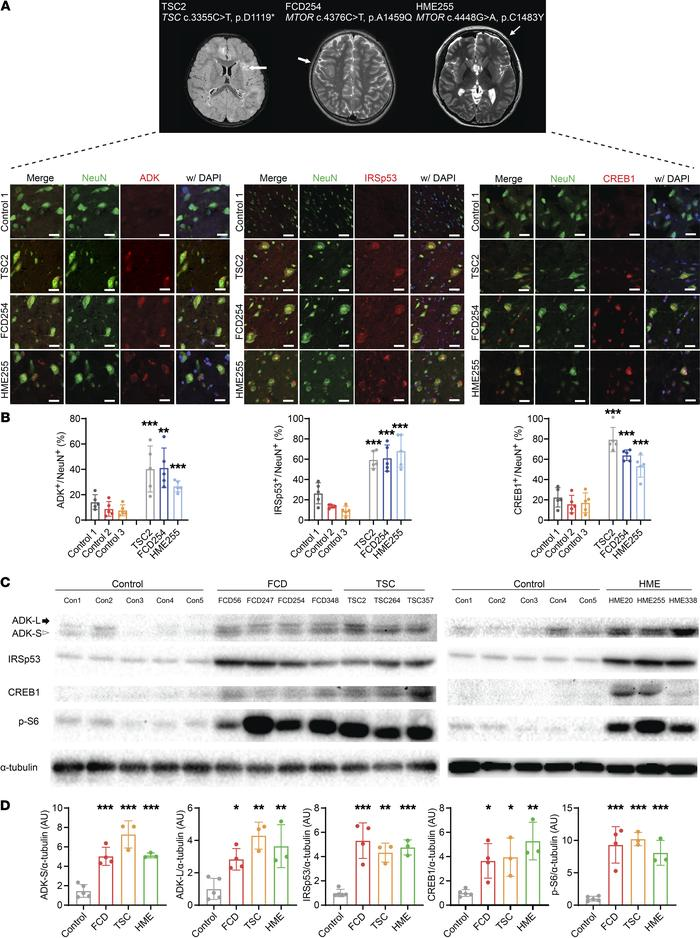 mTOR activation–sensitive genes in patients' brain tissues with somatic ...