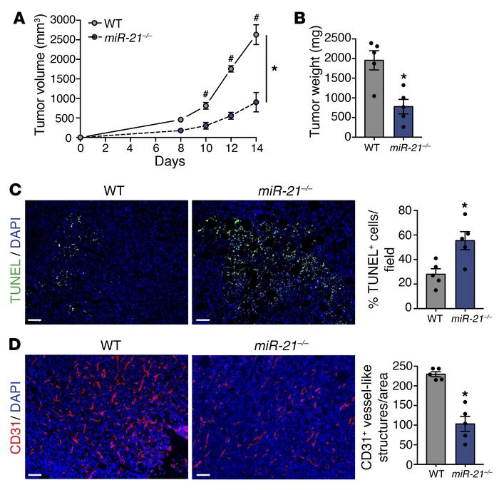 miR-21–deficient mice develop smaller tumors. (A–D) Tumor analysis of WT...
