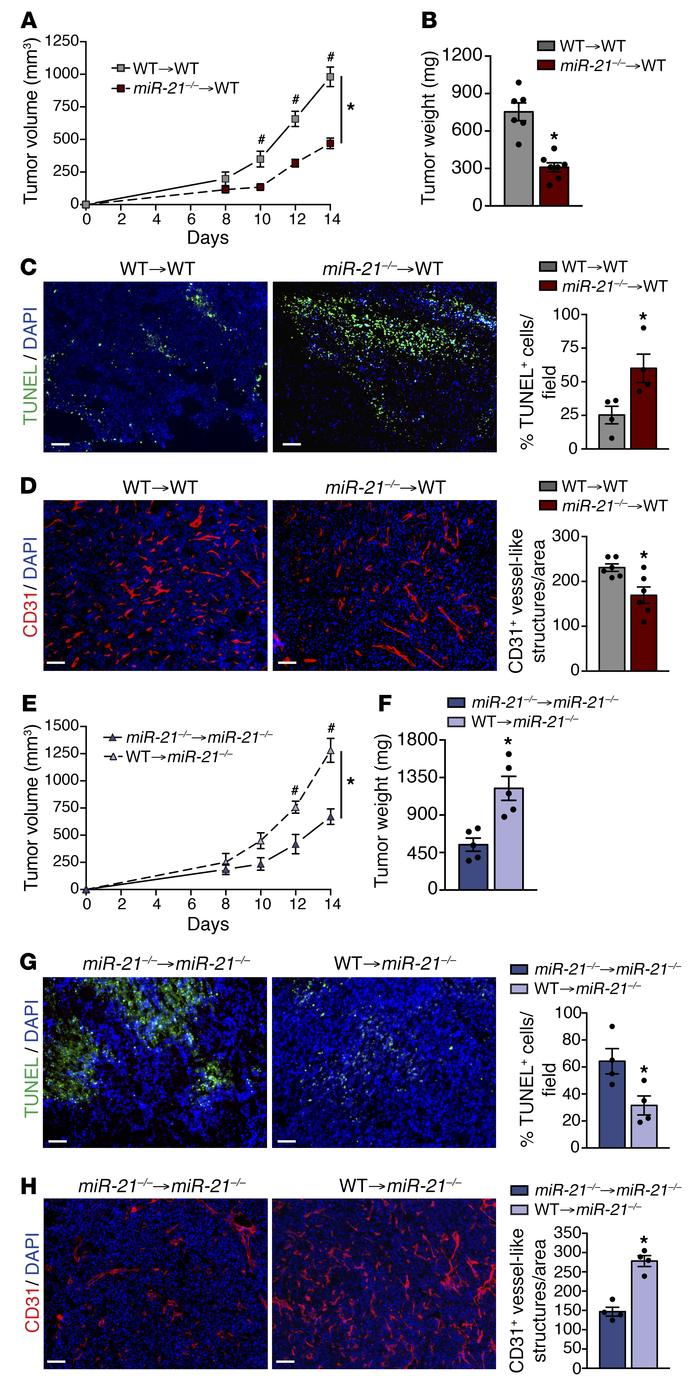 Hematopoietic miR-21 regulates and promotes tumor progression. (A–D) Tum...
