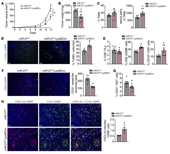 miR-21 expression by TAMs promotes tumor progression by inducing CD8+ T-...