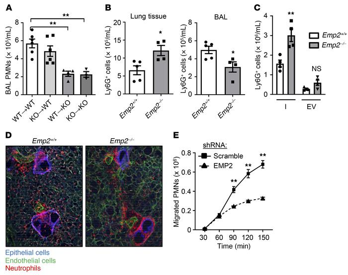 EMP2 regulates transepithelial migration of neutrophils into the alveola...