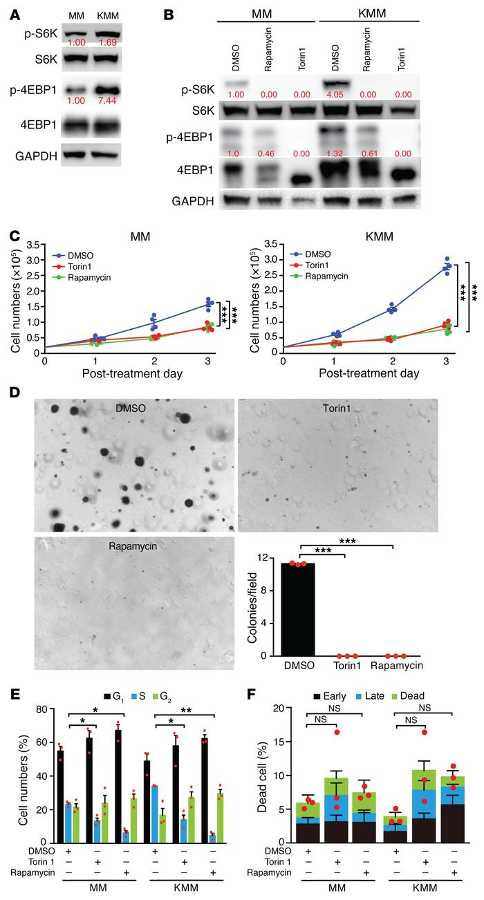 KSHV-transformed cells activate the mTORC1 pathway and are sensitive to ...