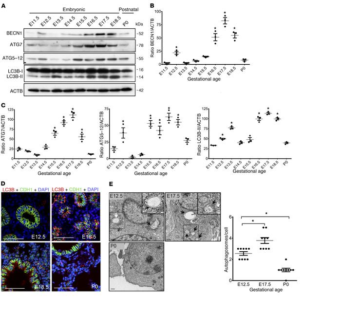 Autophagy activity during embryonic mouse lung development. (A) Represen...