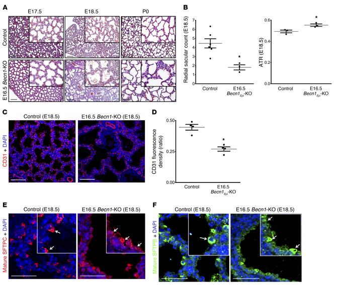 Pulmonary phenotype following deletion of epithelial Becn1 at canalicula...