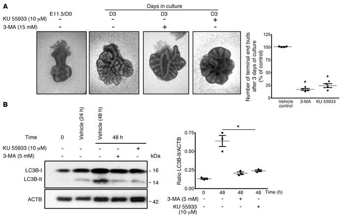 Autophagy inhibition reduces early lung branching in vitro. (A) Represen...