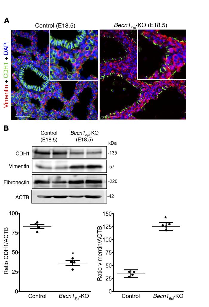 Conditional deletion of epithelial Becn1 affects mesenchymal thinning of...
