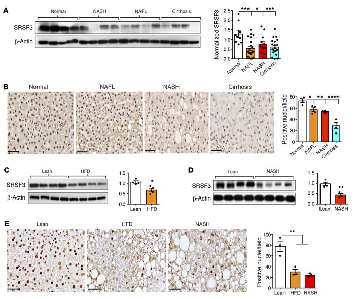 Loss of SRSF3 expression in NAFLD, NASH, and cirrhosis. (A) Immunoblotti...