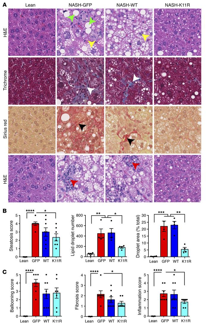 Expression of degradation-resistant SRSF3-K11R reduced liver steatosis, ...