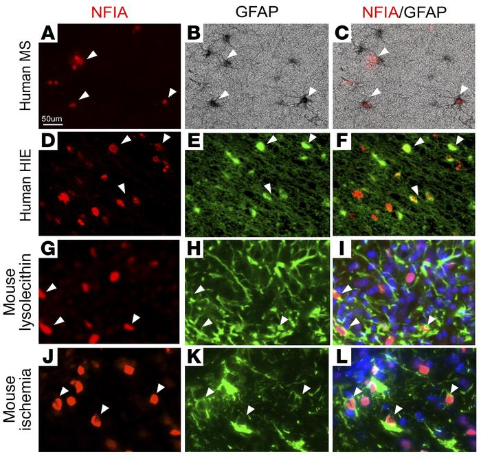 NFIA is expressed in reactive astrocytes. (A–L) Immunofluorescence stain...